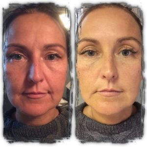 Crystal clear Comcit facial