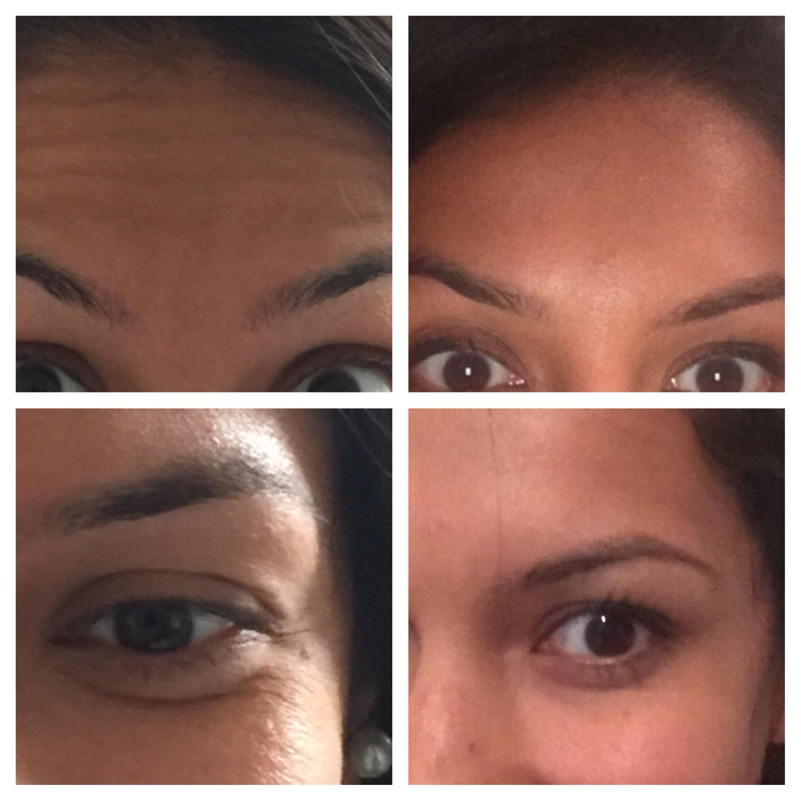 Botox and Fillers | The Beauty Spot Hertford